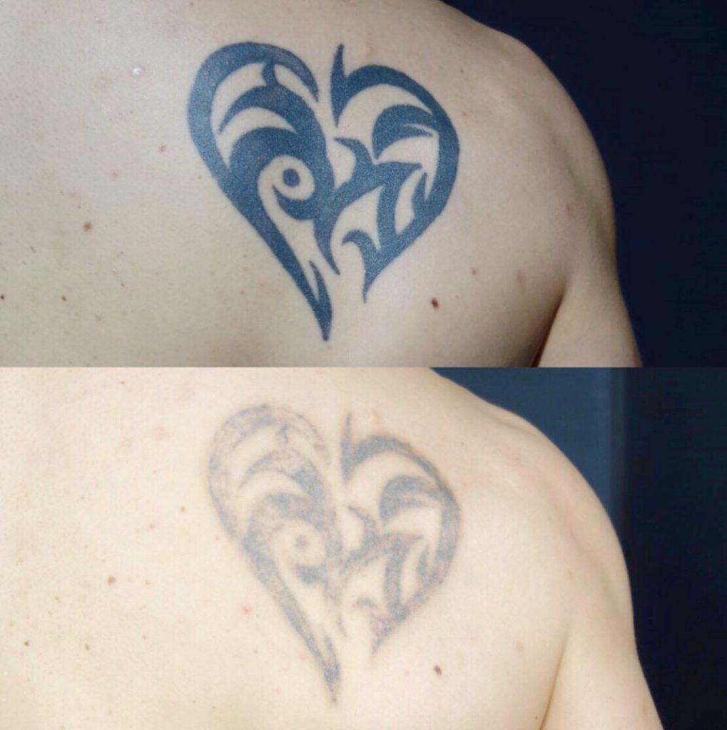 タトゥーを消すならピコレーザー 術後の状態や必要回数を医師が