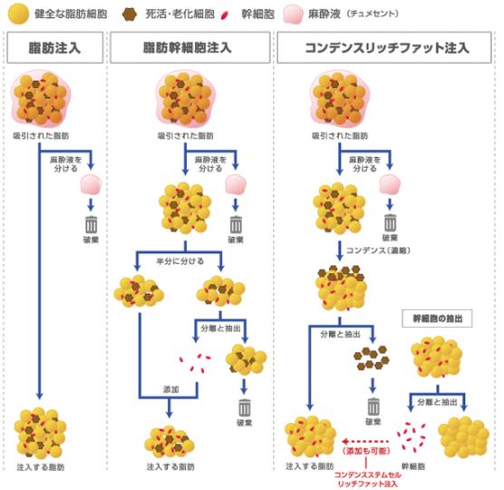 3種類の脂肪注入の概略図