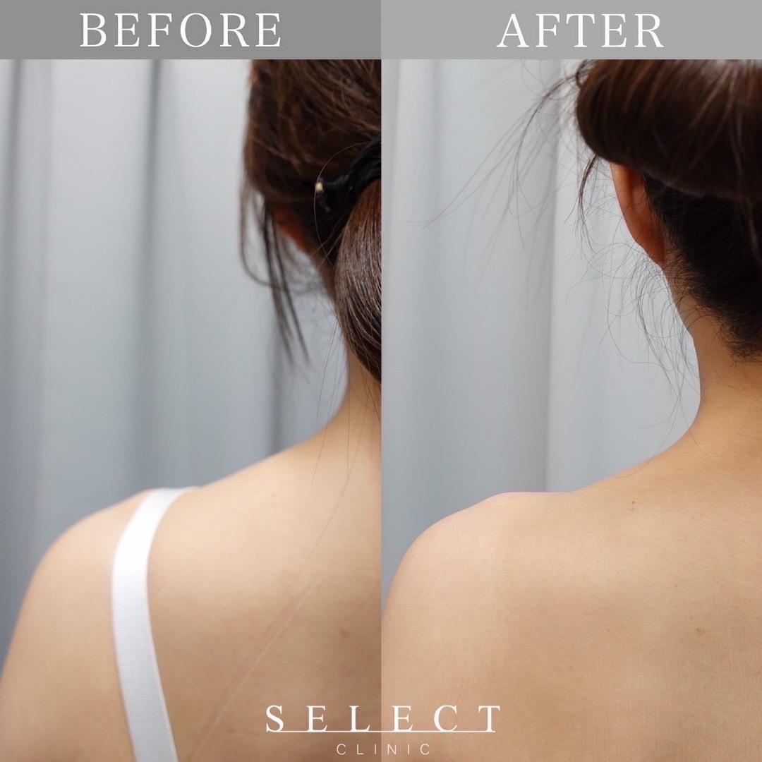 肩ボトックス治療 症例画像2
