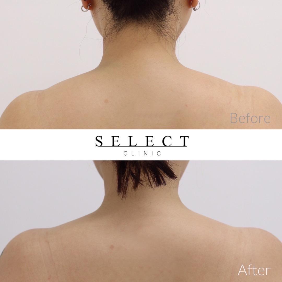 肩ボトックス治療 症例画像1